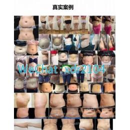 武汉哪里有千古德国溶脂线减肥产品
